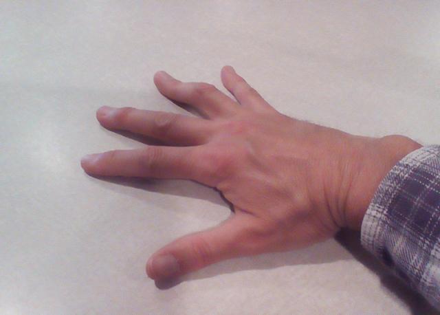 David-Hand